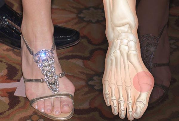 čukljevi na nogama