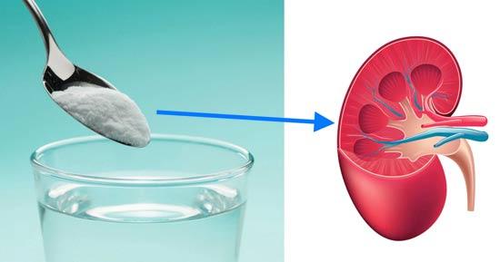 uticaj soda bikarbone na bubrege